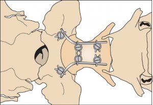 Atlanto-axiális subluxatio